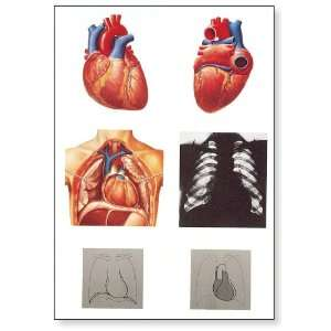 3B Scientific V2053U The Heart I Anatomy Chart, without Wooden Rods