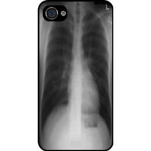 Rikki KnightTM Chest X Ray Rubber Black iphone Case (with